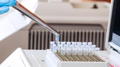 Анализ на активированное частичное тромбопластиновое время (АЧТВ)